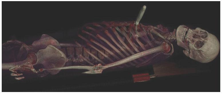 O'Reilly Media: Компьютерный снимок умершего от ранения ножом - Kapital.kz